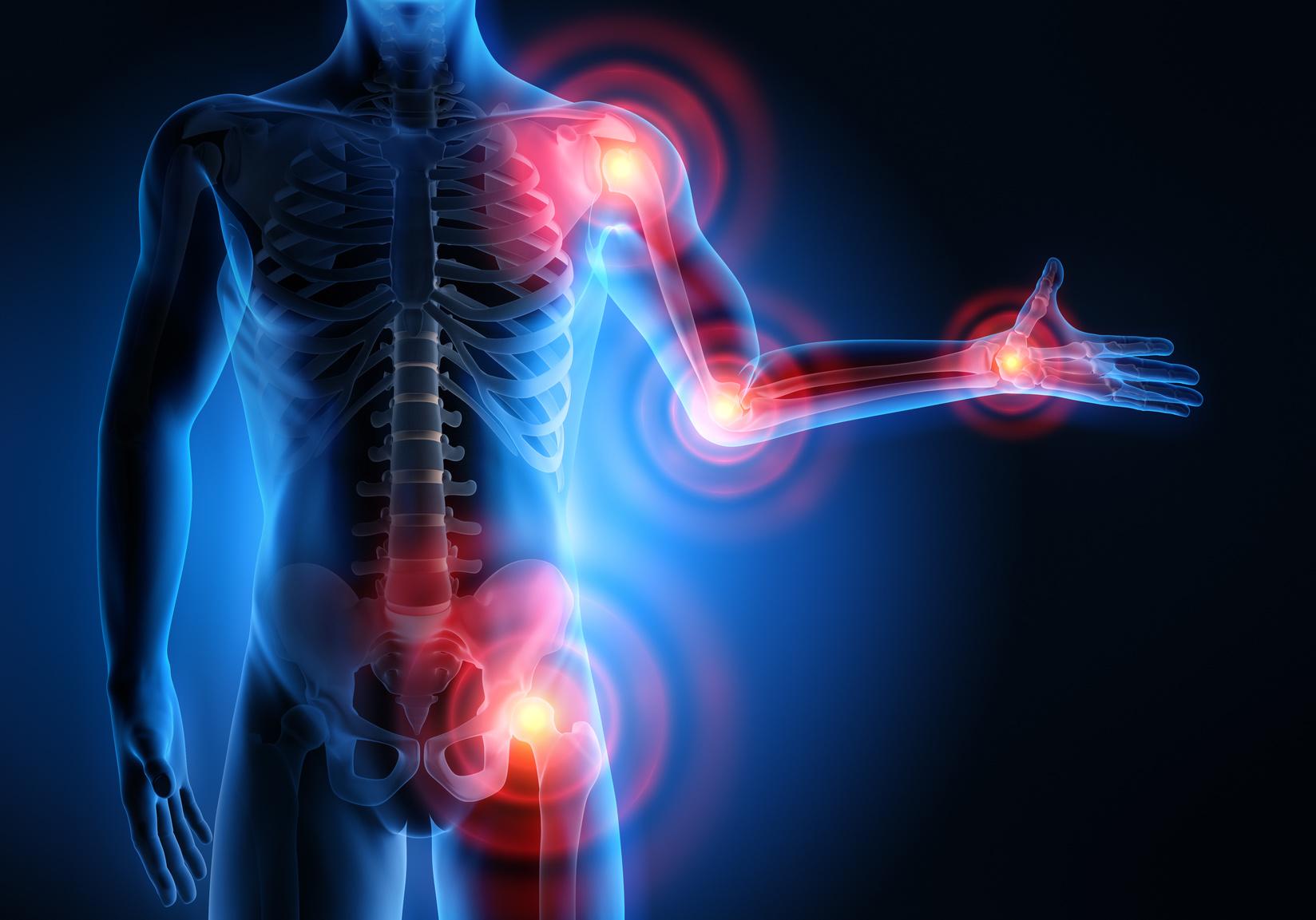 Proloterapia para ligamentos, tendones y cartílago