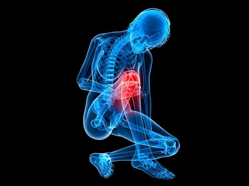 ¿Cómo rehabilitar el dolor músculo esquelético