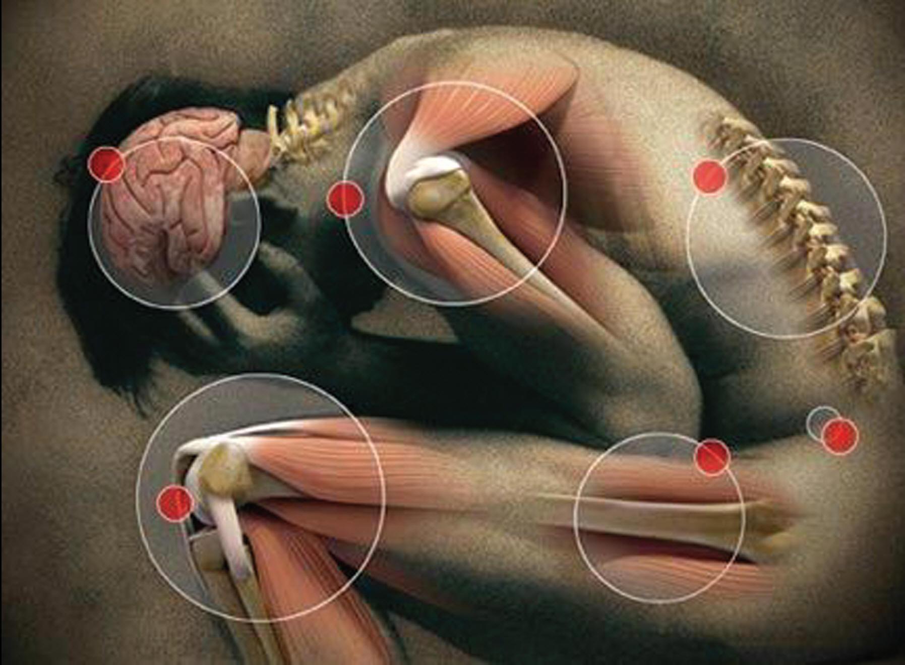 La proloterapia, un tratamiento para curar el dolor musculo ...