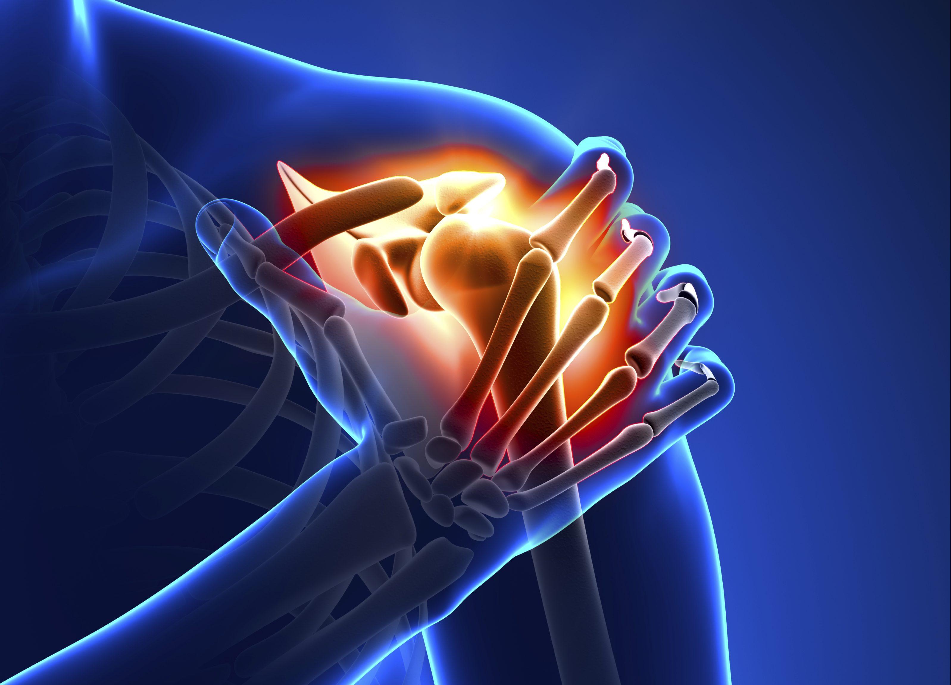 Cómo rehabilitar con PRP y Proloterapia el hombro