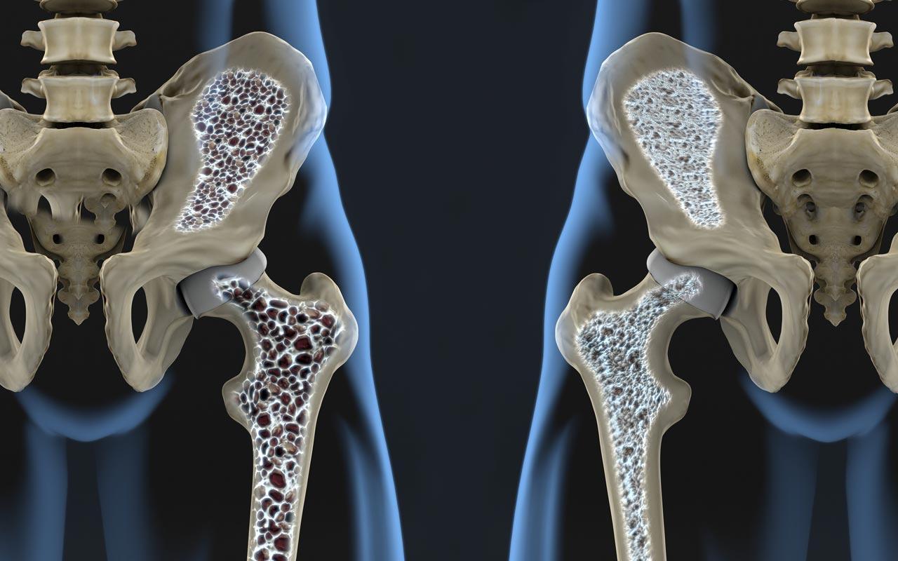 La osteoporosis debilita los huesos y aumenta la posibilidad de sufrir diferentes fracturas - Dr. Mauricio Arouesty