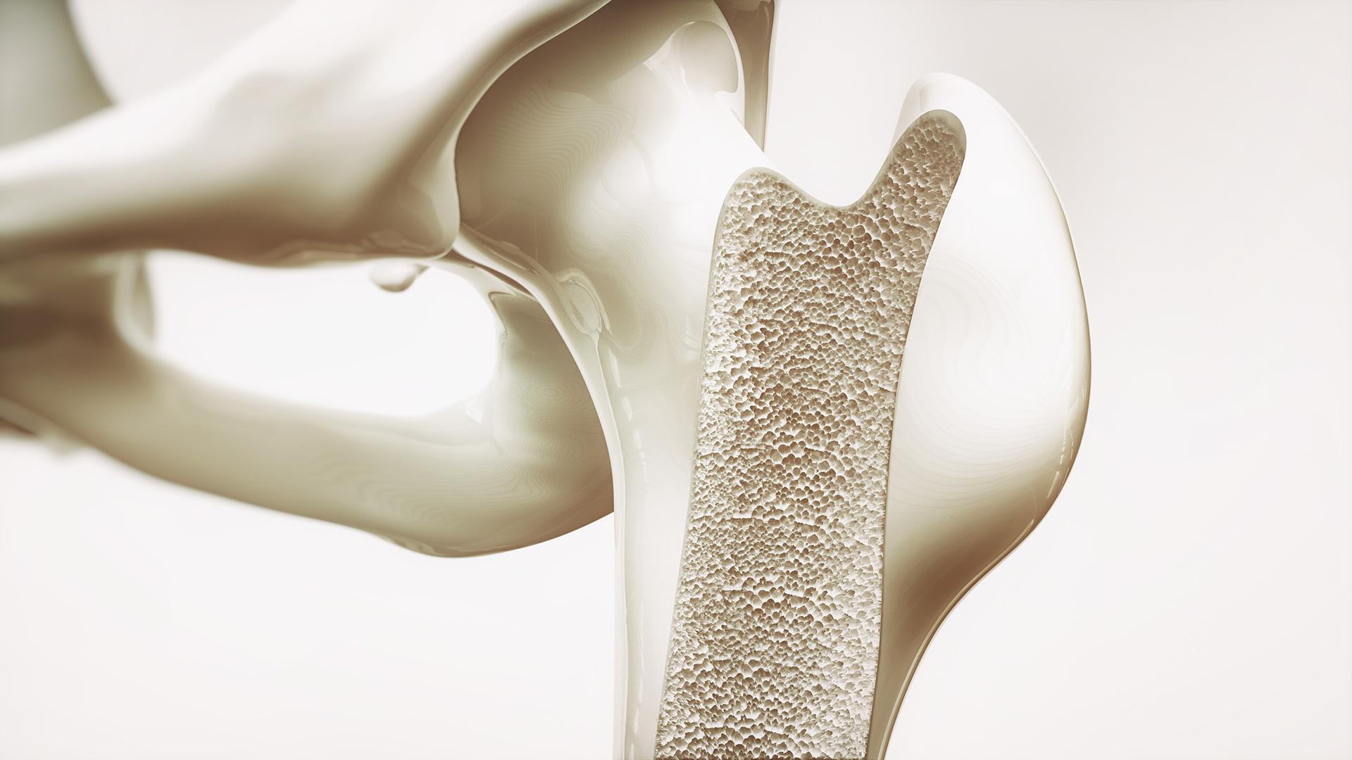 Cuando el tejido de los huesos comienza a debilitarse, hay una baja densidad ósea